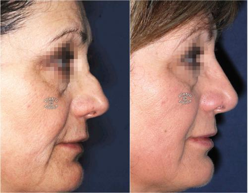 nose job revision 3