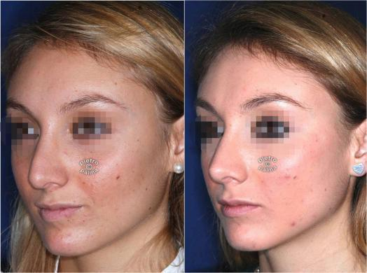 revision rhinoplasty before and after 2