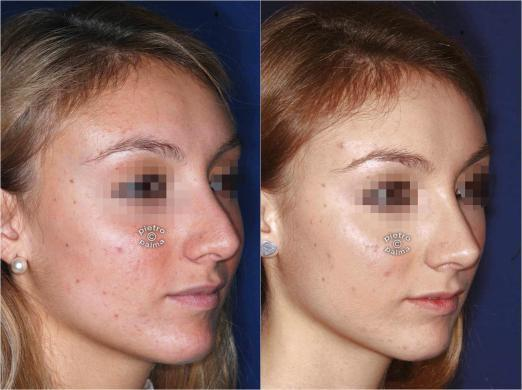 revision rhinoplasty before and after 5