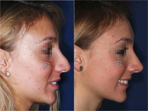 revision rhinoplasty before and after 6