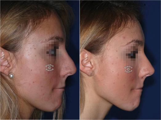 revision rhinoplasty before and after 7
