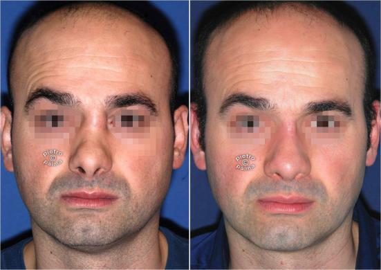 revision rhinoplasty before and after man