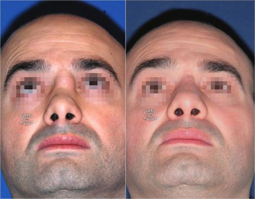revision rhinoplasty before and after man 1