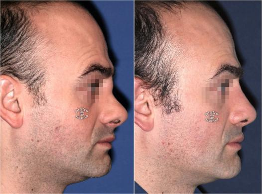 revision rhinoplasty before and after man 2