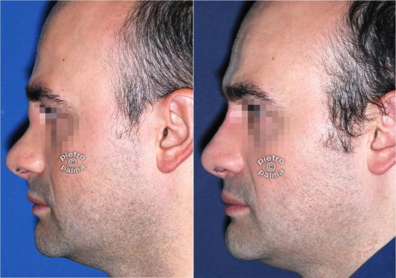 revision rhinoplasty before and after man 3