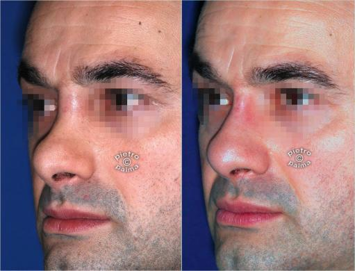 revision rhinoplasty before and after man 5