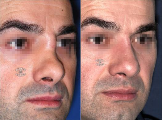 revision rhinoplasty before and after man 6