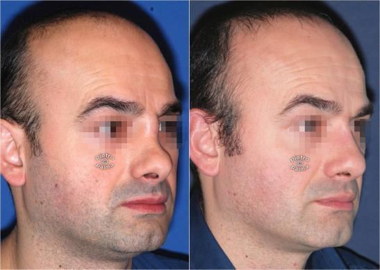 revision rhinoplasty before and after man 4