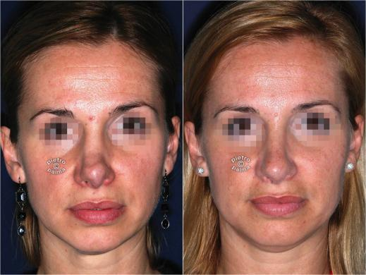 revision rhinoplasty before and after woman 1