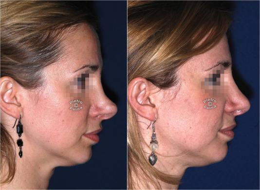 revision rhinoplasty before and after woman 2