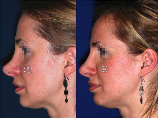 rinoplastica di revisione donna 2