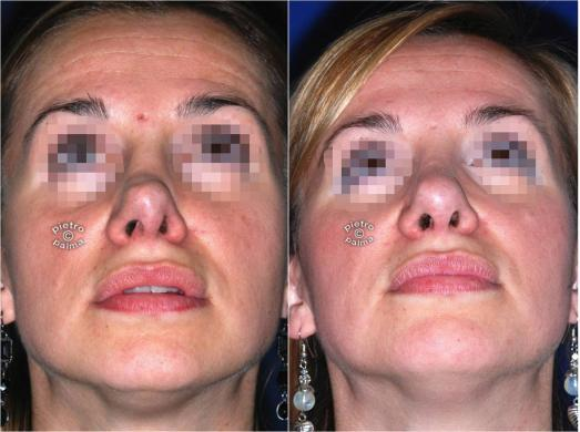 revision rhinoplasty before and after woman 4