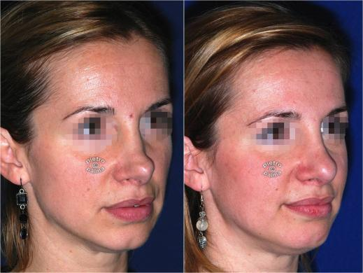 revision rhinoplasty before and after woman 5