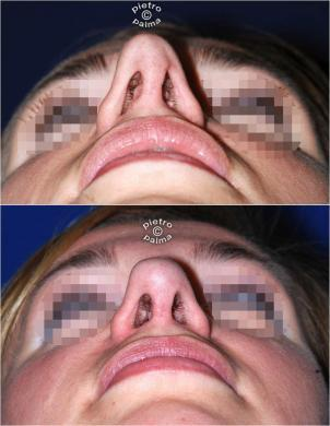 revision rhinoplasty before and after woman