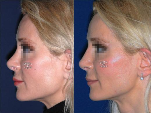 revision rhinoplasty before and after woman 0