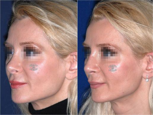 revision rhinoplasty before and after woman photo