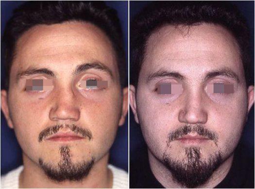 rinoplastica di revisione prima e dopo 2