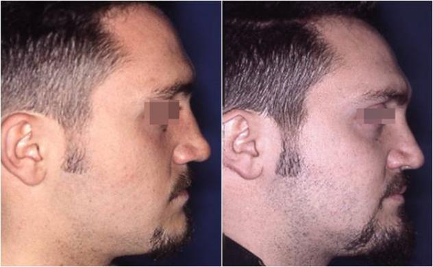 rinoplastica di revisione prima e dopo 4