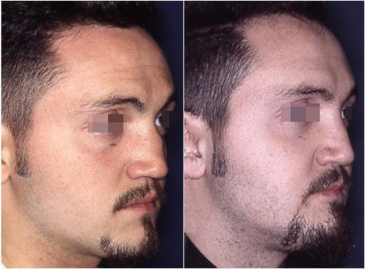 rinoplastica di revisione prima e dopo 3
