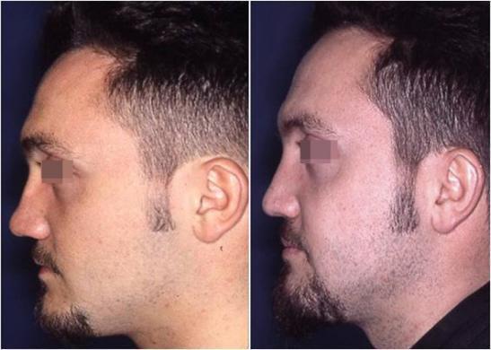 rinoplastica di revisione prima e dopo 6