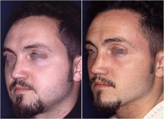 rinoplastica di revisione prima e dopo 5