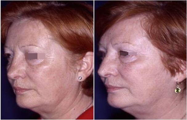 revision rhinoplasty before and after 9