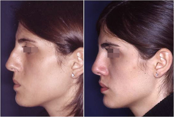 rhinoplasty revision before and after