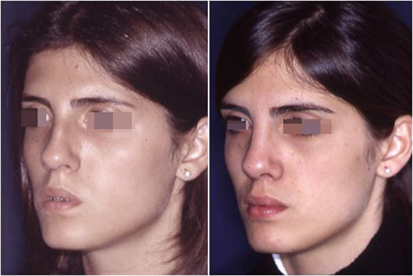 extreme rhinoplasty before and after 3