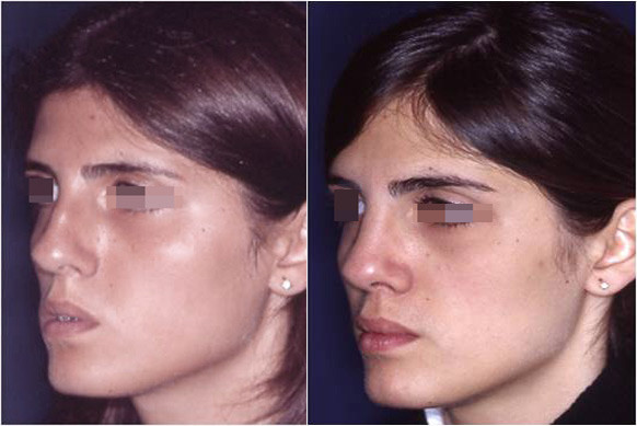 extreme rhinoplasty before and after