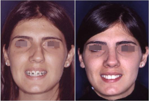 extreme rhinoplasty before and after 2