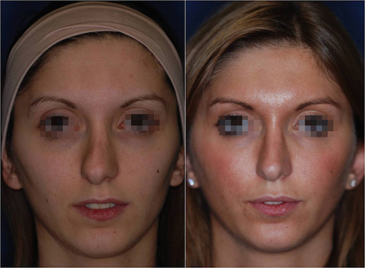 nose job revision before and after 1