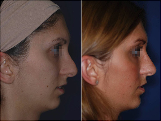 nose revision surgery before and after 5