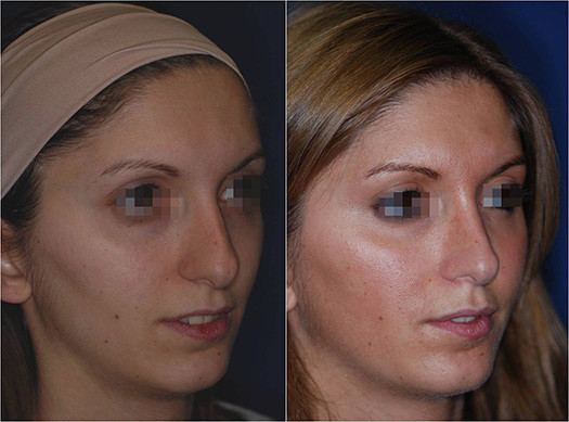 nose job revision 9