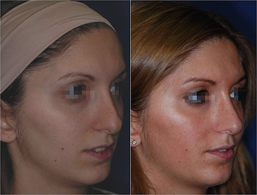 nose job revision before and after 2