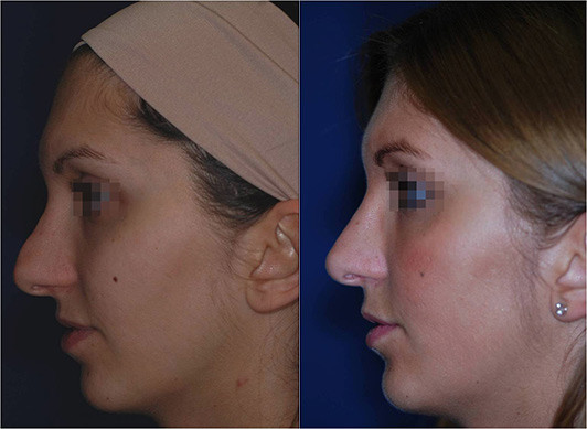 nose job revision before and after 5