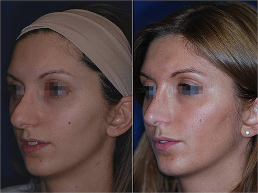 nose job revision before and after 3