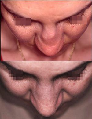 saddle nose before & after 1