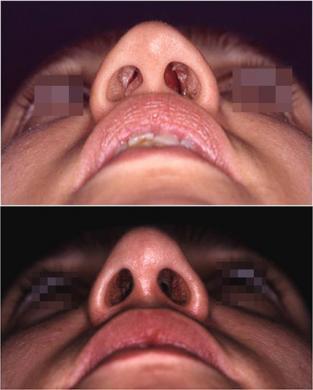 saddle nose