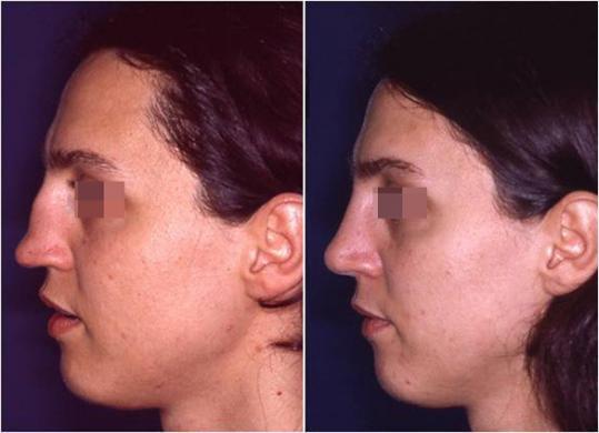 saddle nose rhinoplasty
