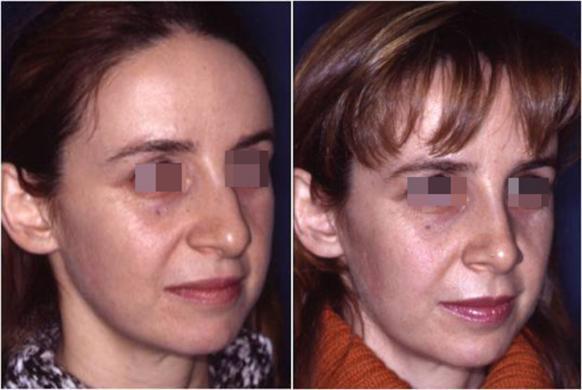 rinoplastica prima e dopo casi speciali donna 6