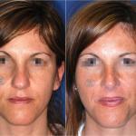 Scultura della punta Nasale / Nose Tip sculpting