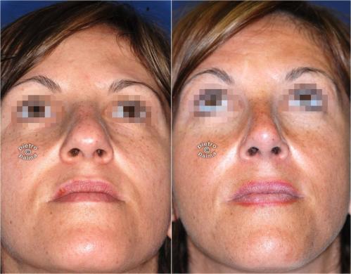 Scultura della punta Naso 1