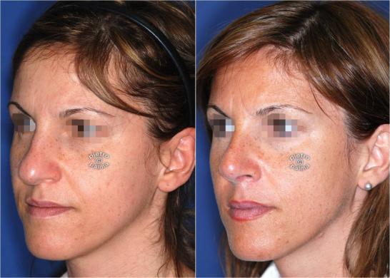 Scultura della punta Naso 2