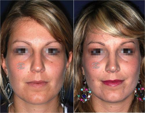 Scultura della punta Naso 3