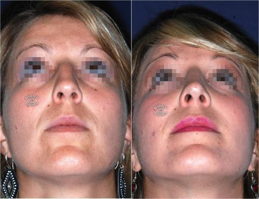 Scultura della punta Naso 4