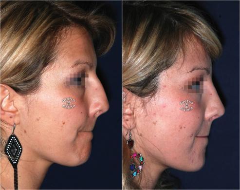 Scultura della punta Naso 5