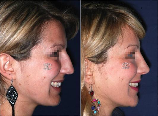 Scultura della punta Naso 6