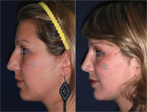 nose tip before and after 2