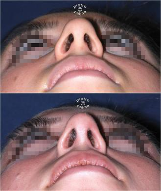 nose tip before and after 4