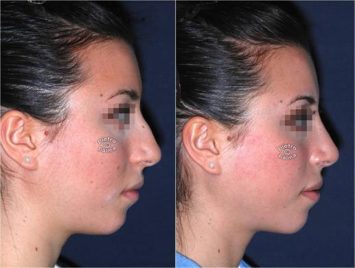 punta naso prima e dope foto 5